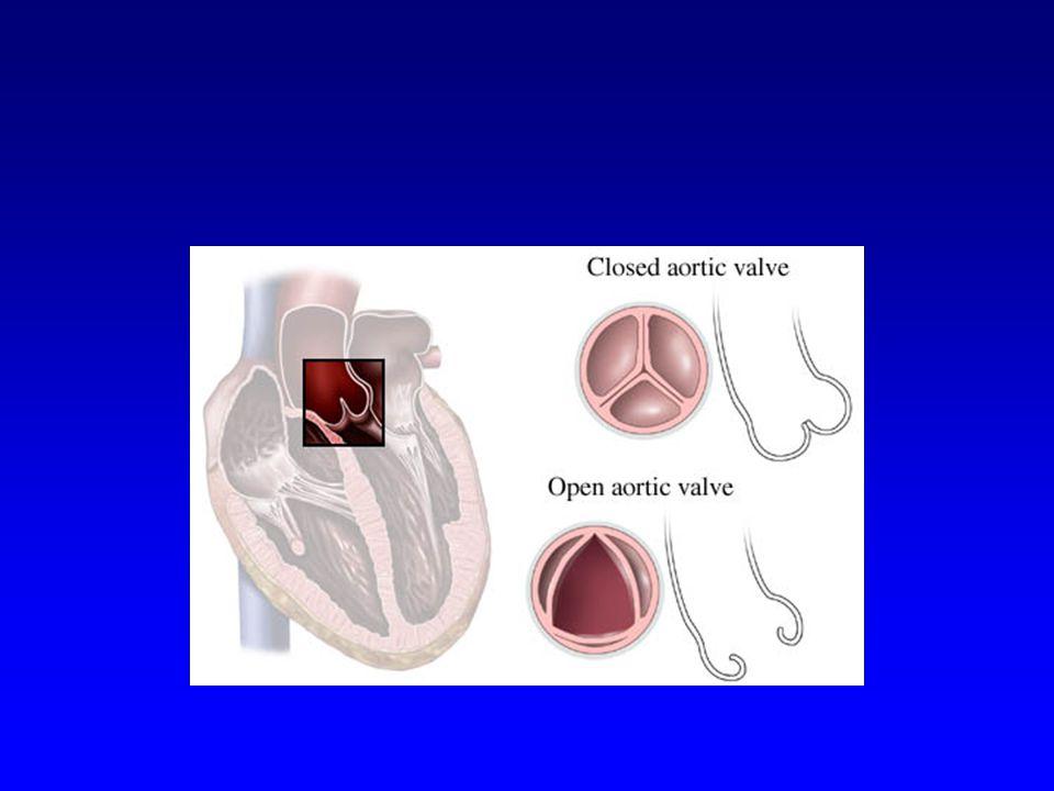 Dispne Geç dönemde kalp yetmezliğine bağlı Survi  Anjina 5 yıl  Senkop 3 yıl  Dispne 2 yıl