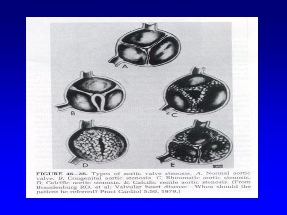 Konjenital Aort Darlığı Üniküspid Biküspid Triküspid