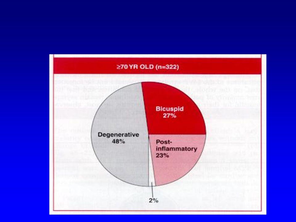 Aort Darlığı EKG SV hipertrofisi strain- ST-T değişiklikleri