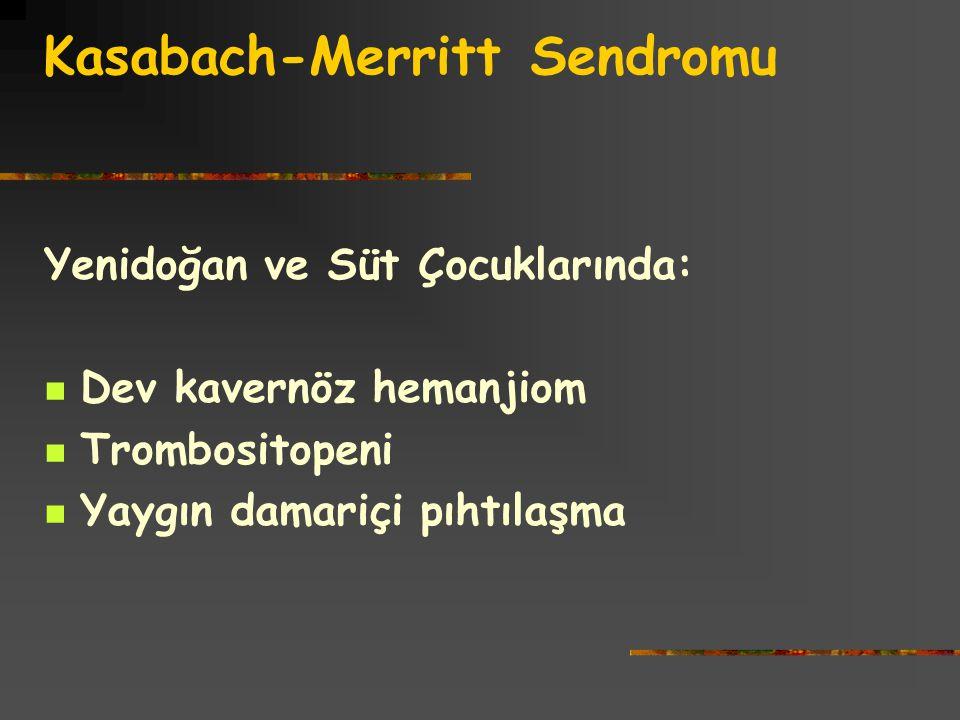 Kasabach-Merritt Sendromu Yenidoğan ve Süt Çocuklarında: Dev kavernöz hemanjiom Trombositopeni Yaygın damariçi pıhtılaşma