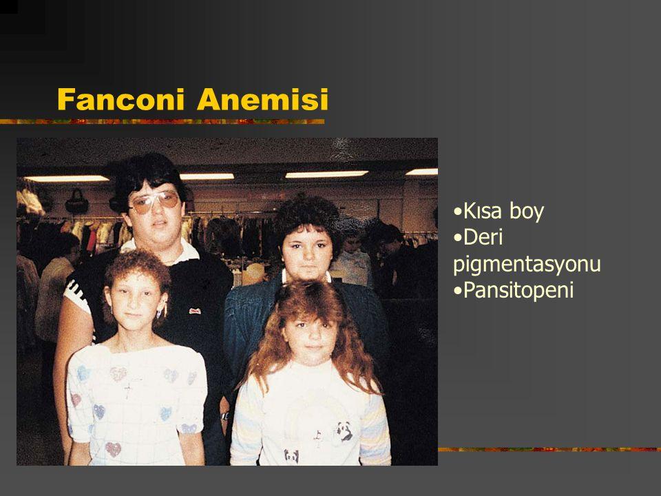 Fanconi Anemisi Kısa boy Deri pigmentasyonu Pansitopeni