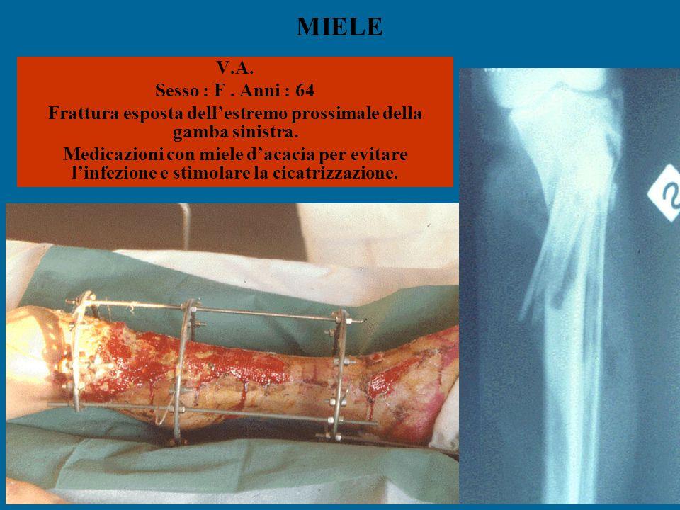 MIELE V.A. Sesso : F. Anni : 64 Frattura esposta dell'estremo prossimale della gamba sinistra. Medicazioni con miele d'acacia per evitare l'infezione
