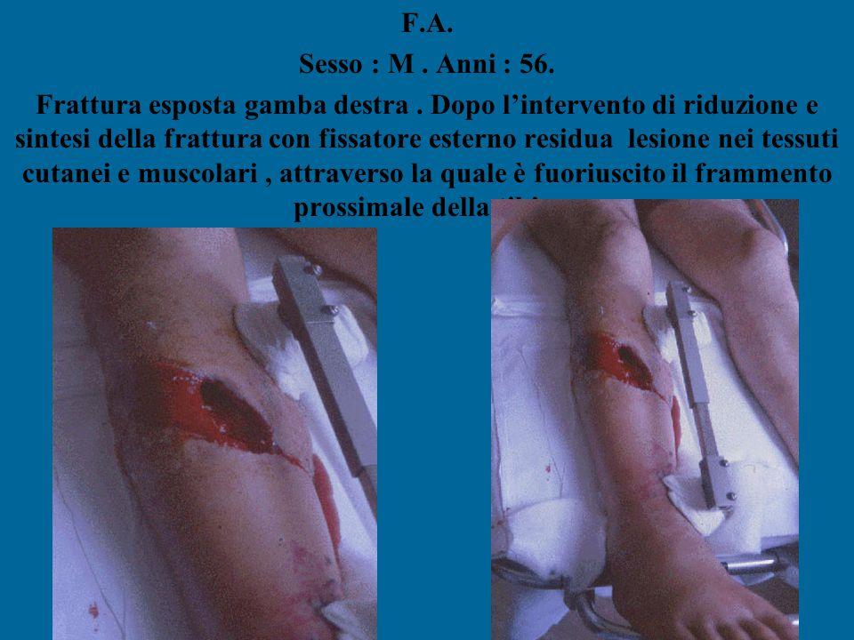 F.A. Sesso : M. Anni : 56. Frattura esposta gamba destra. Dopo l'intervento di riduzione e sintesi della frattura con fissatore esterno residua lesion