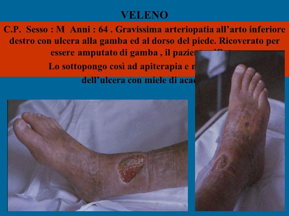 VELENO C.P. Sesso : M Anni : 64. Gravissima arteriopatia all'arto inferiore destro con ulcera alla gamba ed al dorso del piede. Ricoverato per essere