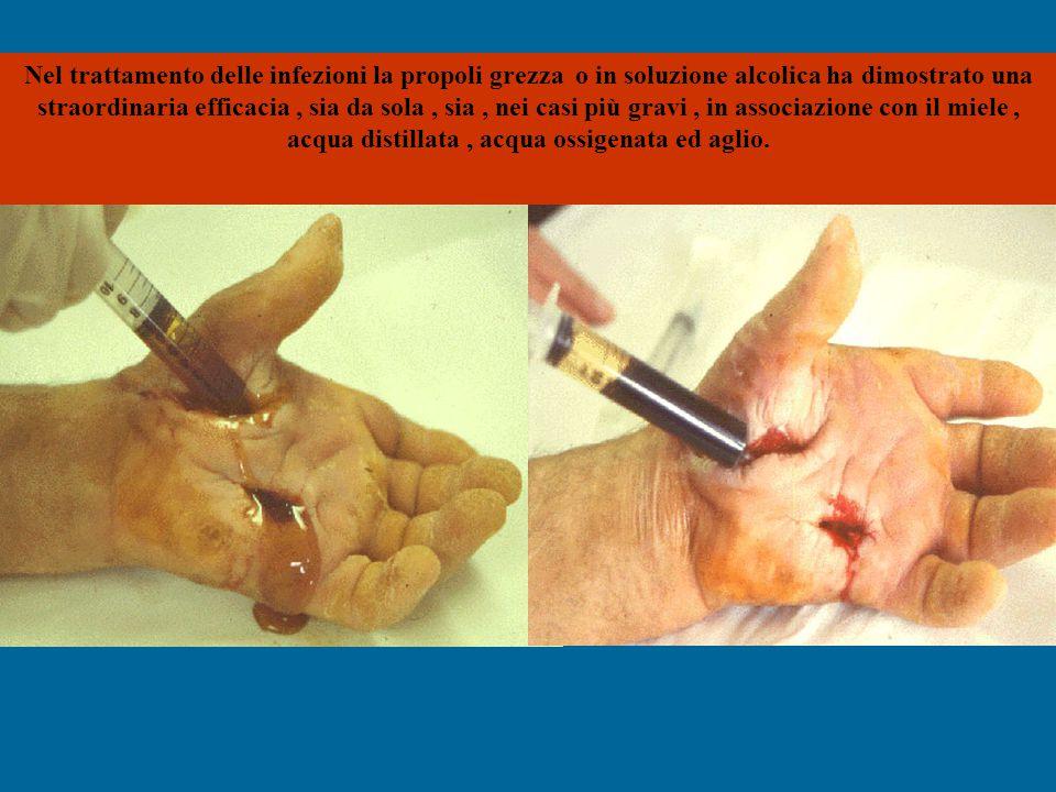 Nel trattamento delle infezioni la propoli grezza o in soluzione alcolica ha dimostrato una straordinaria efficacia, sia da sola, sia, nei casi più gr