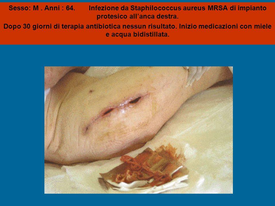 Sesso: M. Anni : 64. Infezione da Staphilococcus aureus MRSA di impianto protesico all'anca destra. Dopo 30 giorni di terapia antibiotica nessun risul