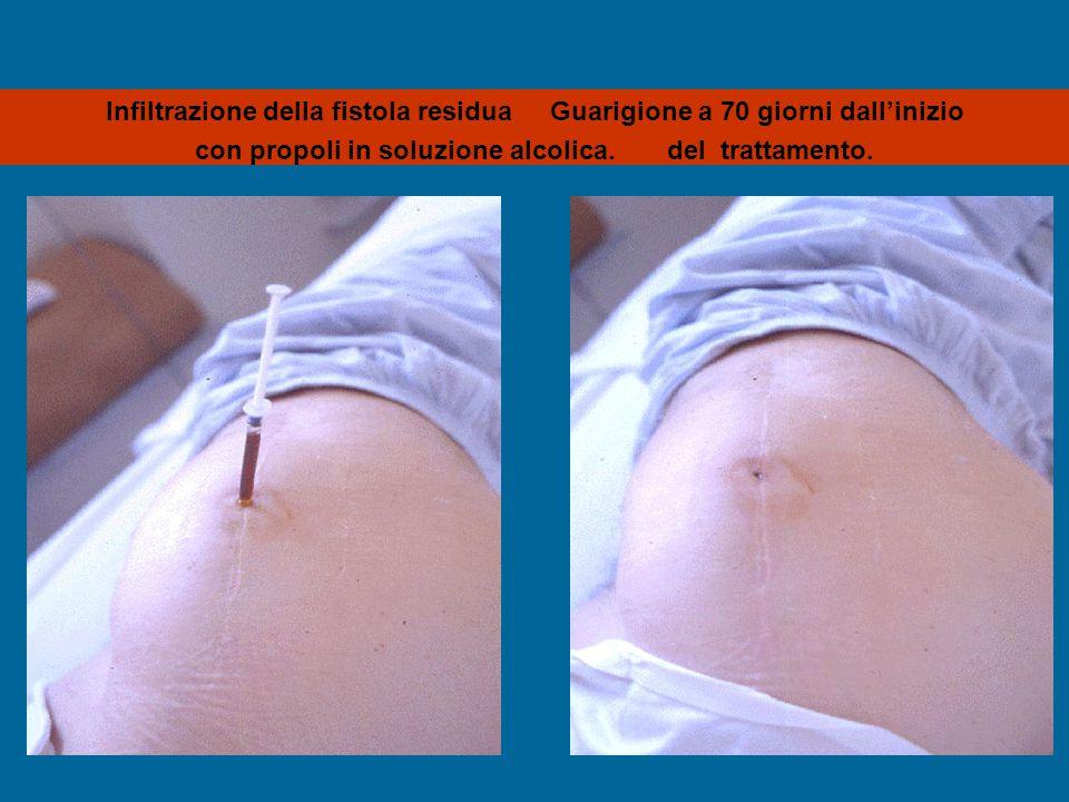 Infiltrazione della fistola residua Guarigione a 70 giorni dall'inizio con propoli in soluzione alcolica. del trattamento.
