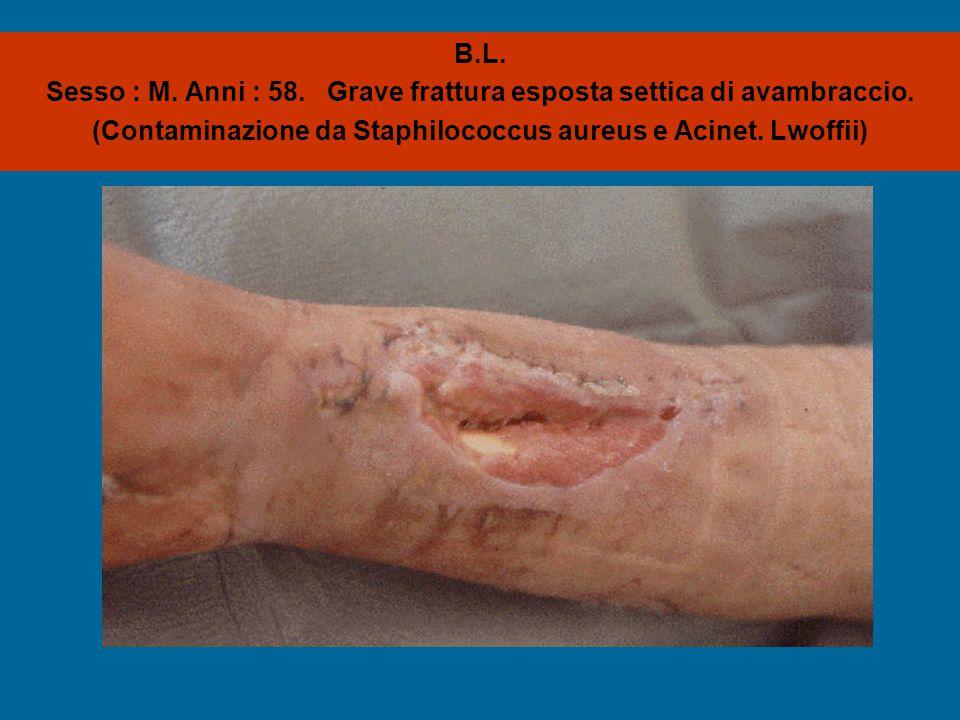 B.L. Sesso : M. Anni : 58. Grave frattura esposta settica di avambraccio. (Contaminazione da Staphilococcus aureus e Acinet. Lwoffii)
