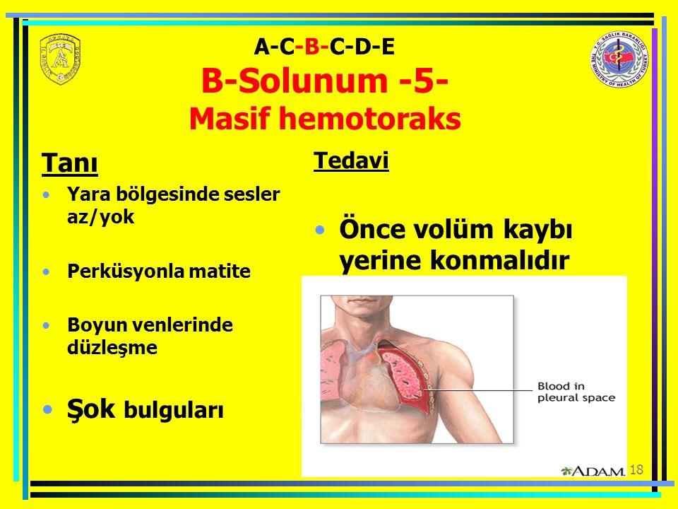 18 Tanı Yara bölgesinde sesler az/yok Perküsyonla matite Boyun venlerinde düzleşme Şok bulguları Tedavi Önce volüm kaybı yerine konmalıdır A-C-B-C-D-E B-Solunum -5- Masif hemotoraks