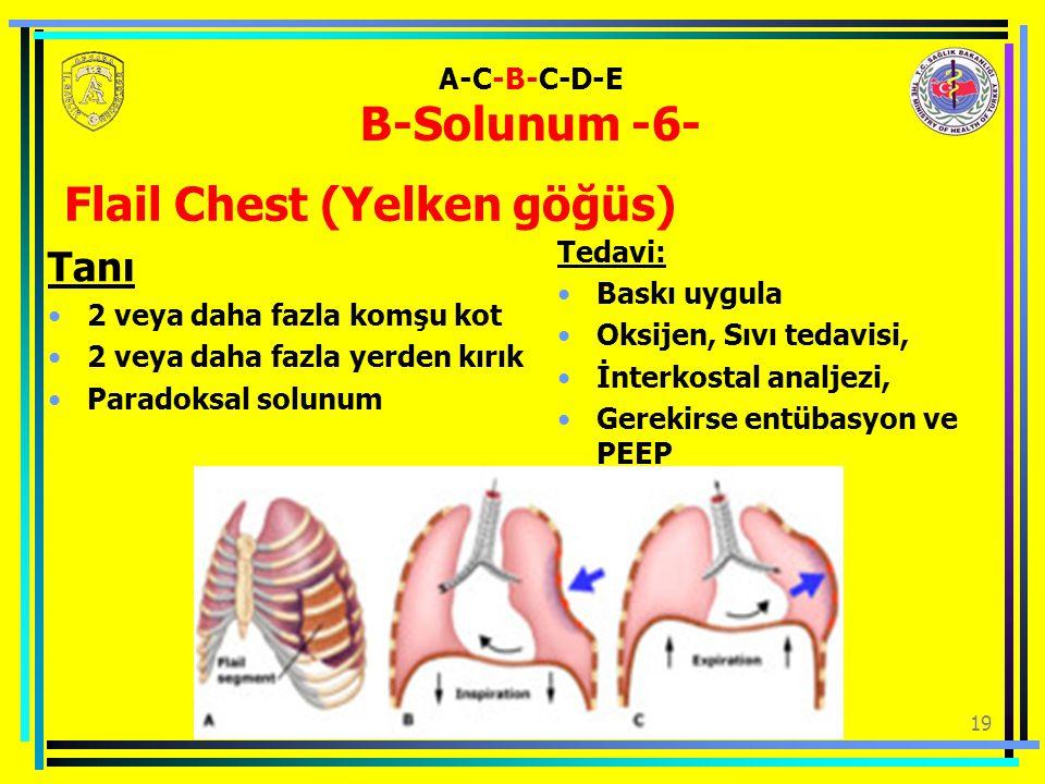 19 A-C-B-C-D-E B-Solunum -6- Tanı 2 veya daha fazla komşu kot 2 veya daha fazla yerden kırık Paradoksal solunum Tedavi: Baskı uygula Oksijen, Sıvı tedavisi, İnterkostal analjezi, Gerekirse entübasyon ve PEEP Flail Chest (Yelken göğüs)