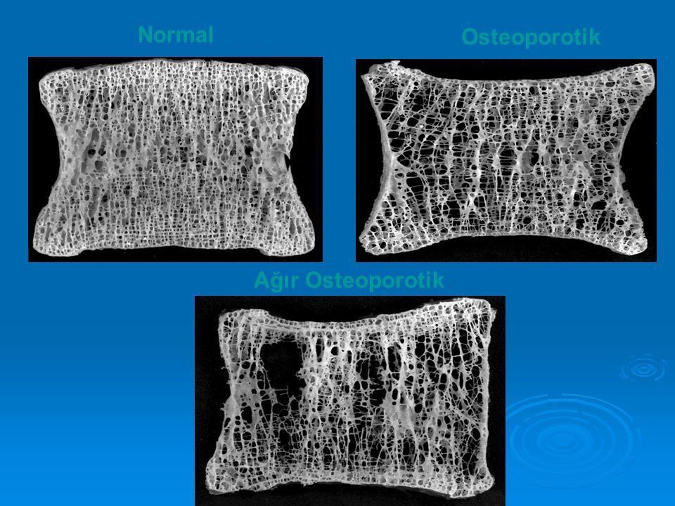 Osteoporotik Ağır Osteoporotik Normal