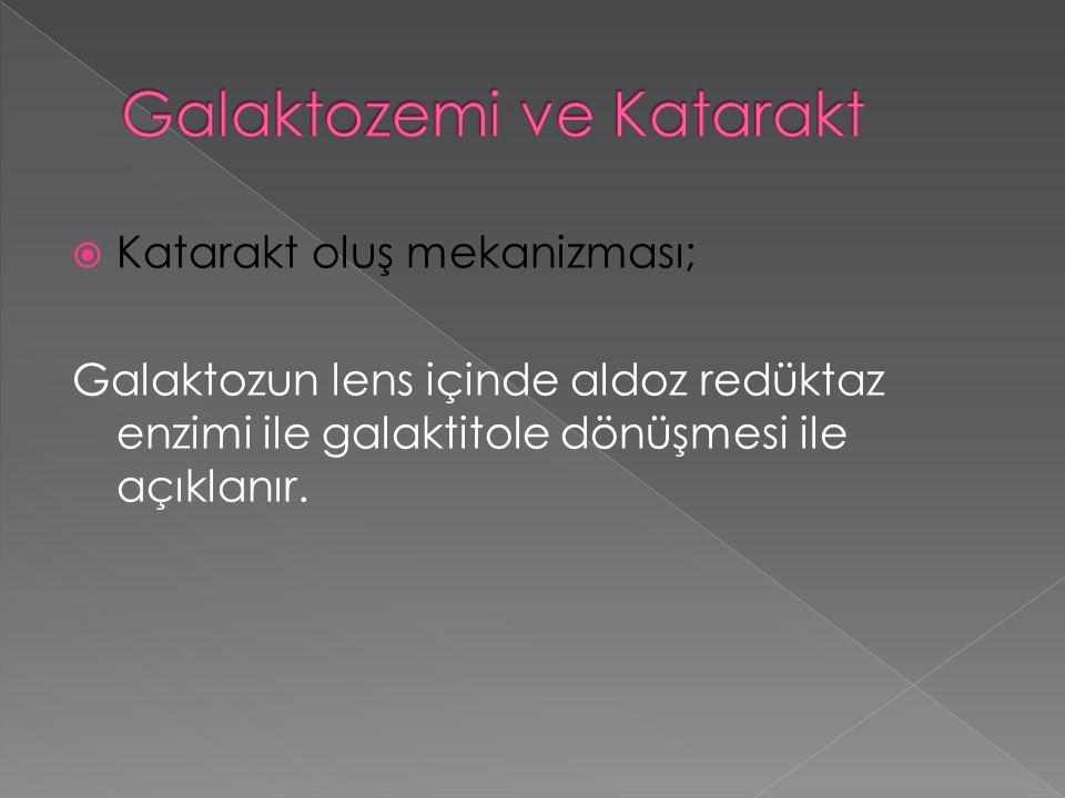  Katarakt oluş mekanizması; Galaktozun lens içinde aldoz redüktaz enzimi ile galaktitole dönüşmesi ile açıklanır.