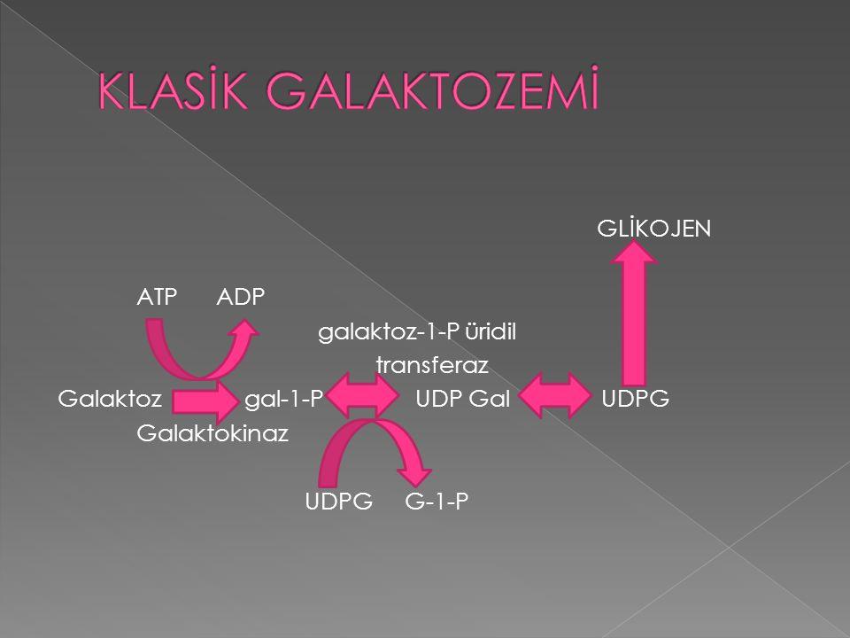 GLİKOJEN ATP ADP galaktoz-1-P üridil transferaz Galaktoz gal-1-P UDP Gal UDPG Galaktokinaz UDPG G-1-P