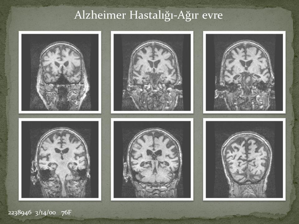 Alzheimer Hastalığı-Ağır evre 2238946 3/14/00 76F