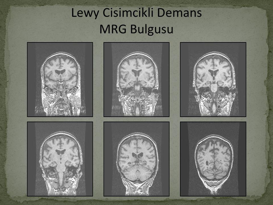 Lewy Cisimcikli Demans MRG Bulgusu