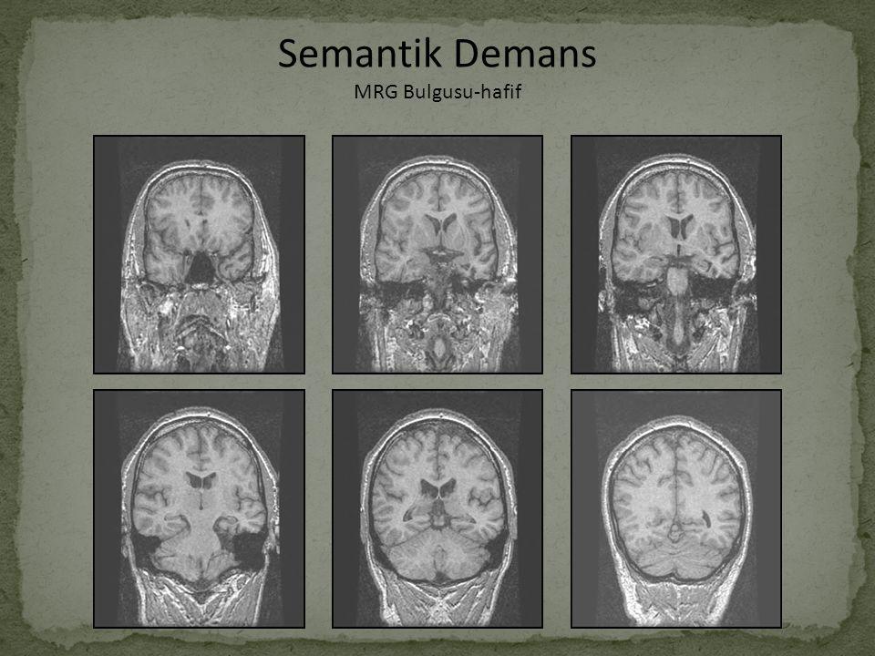 Semantik Demans MRG Bulgusu-hafif