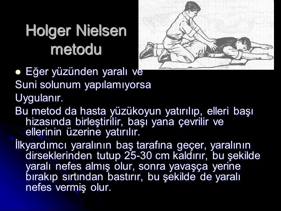 Holger Nielsen metodu Eğer yüzünden yaralı ve Eğer yüzünden yaralı ve Suni solunum yapılamıyorsa Uygulanır. Bu metod da hasta yüzükoyun yatırılıp, ell