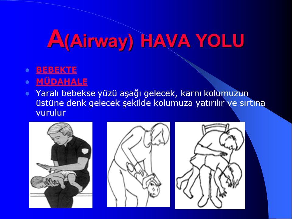A (Airway) HAVA YOLU BEBEKTE MÜDAHALE Yaralı bebekse yüzü aşağı gelecek, karnı kolumuzun üstüne denk gelecek şekilde kolumuza yatırılır ve sırtına vur