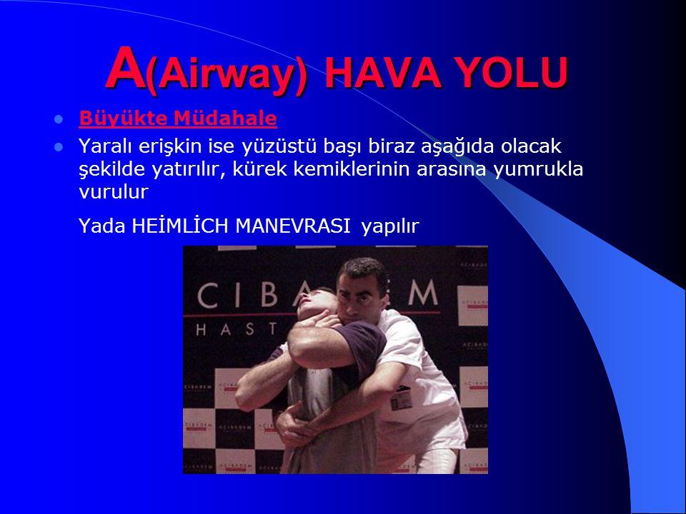 A (Airway) HAVA YOLU Büyükte Müdahale Yaralı erişkin ise yüzüstü başı biraz aşağıda olacak şekilde yatırılır, kürek kemiklerinin arasına yumrukla vuru