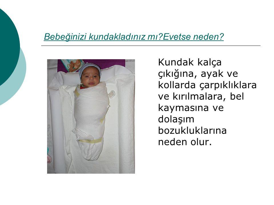 Bebeğinizi kundakladınız mı?Evetse neden? Kundak kalça çıkığına, ayak ve kollarda çarpıklıklara ve kırılmalara, bel kaymasına ve dolaşım bozuklukların