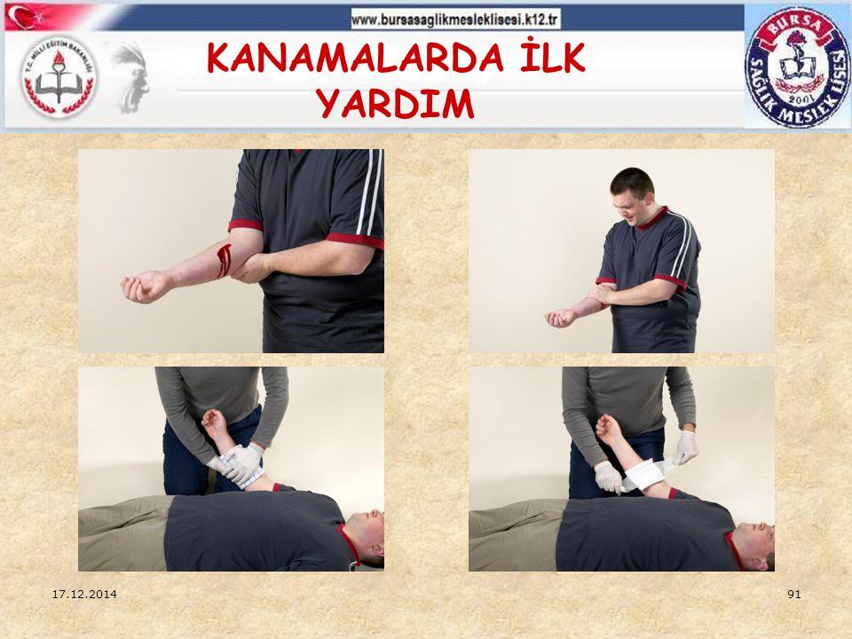 17.12.201490 DIŞ KANAMALARDA İLK YARDIM  Kontrol altına alınamayan kanamalarda kanayan bölgeye en yakın basınç noktasına bası uygulanır,  Kanama kol veya bacaklardaysa ve kırık şüphesi yoksa, kanama bölgesini kalp hizasından yukarıya yükseltilir,  Şok pozisyonu verilir,  Sık sık yaşam belirtileri kontrol edilir ( 2-3 dk.arayla ).
