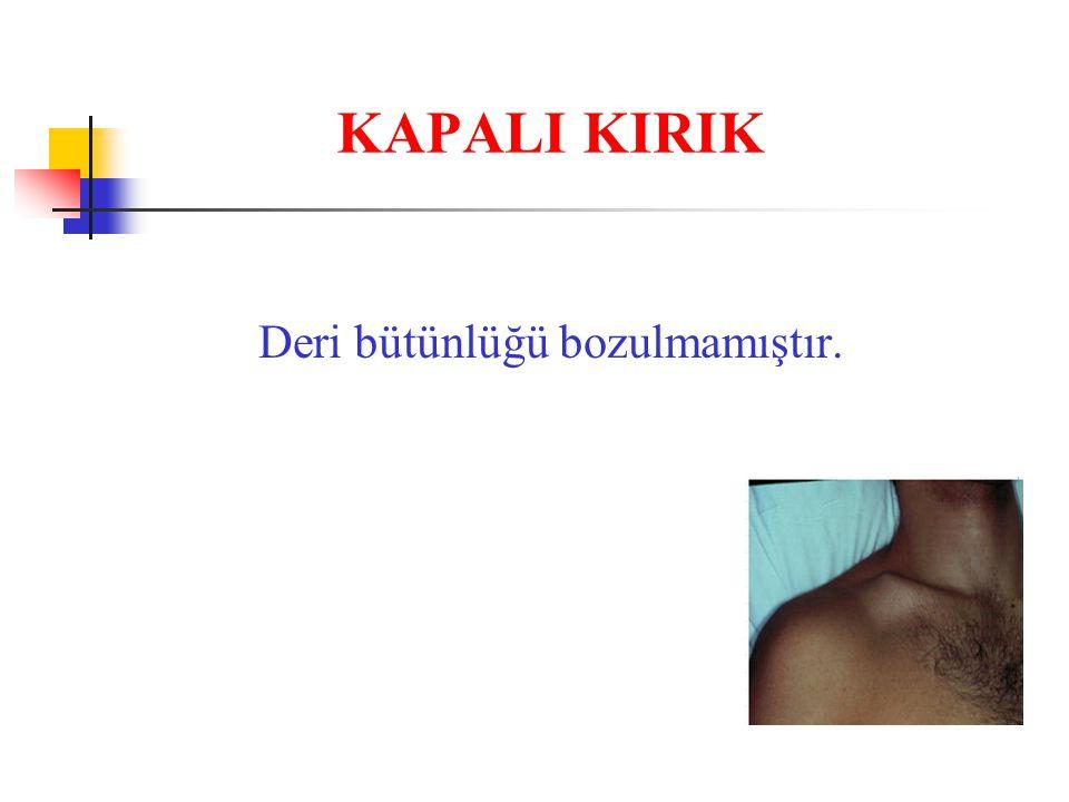 KAPALI KIRIK Deri bütünlüğü bozulmamıştır.