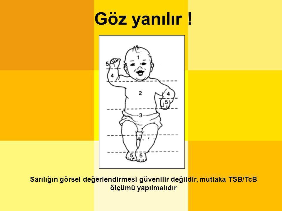 Göz yanılır ! Sarılığın görsel değerlendirmesi güvenilir değildir, mutlaka TSB/TcB ölçümü yapılmalıdır