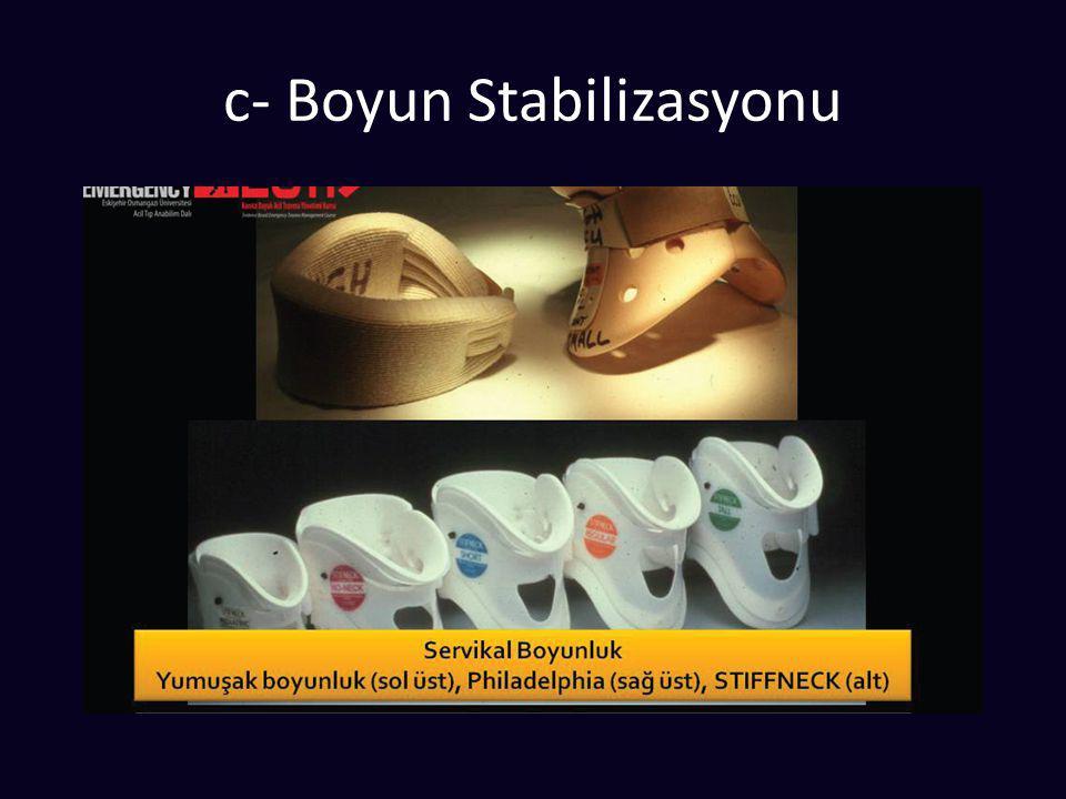 İlk Bakı B (Breathing) - Solunum  Tansiyon pnömotoraks şüphesi  Acil iğne torakostomi  Ardından tüp torakostomi  Yelken göğüs  O2 + analjezi  MV .