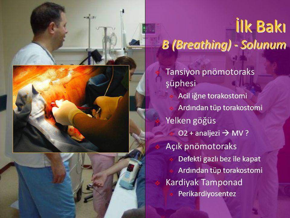 İlk Bakı B (Breathing) - Solunum  Tansiyon pnömotoraks şüphesi  Acil iğne torakostomi  Ardından tüp torakostomi  Yelken göğüs  O2 + analjezi  MV