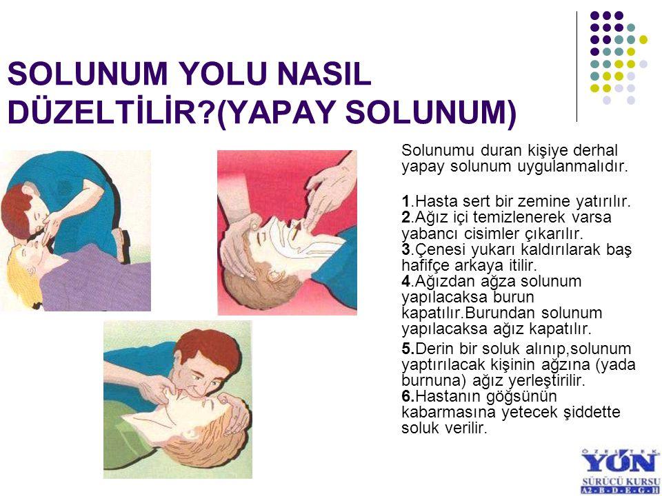 KAZA SONUCU MEYDANA GELEN YARALANMALAR YARA: Etkiler sonunda deri ve deri altı dokularının bütünlüğünde meydana gelen bozulmalara yara denir.
