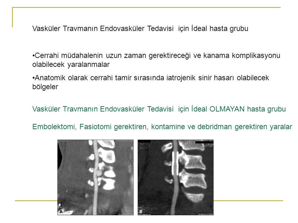 Vasküler Travmanın Endovasküler Tedavisi için İdeal hasta grubu Cerrahi müdahalenin uzun zaman gerektireceği ve kanama komplikasyonu olabilecek yarala