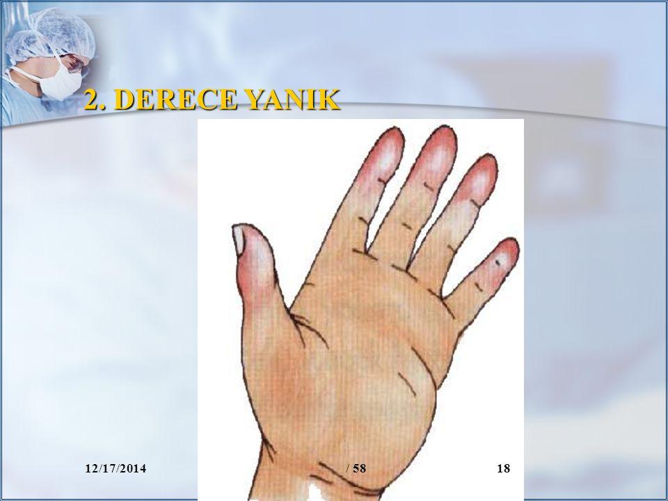 2. DERECE YANIK 12/17/2014/ 5818
