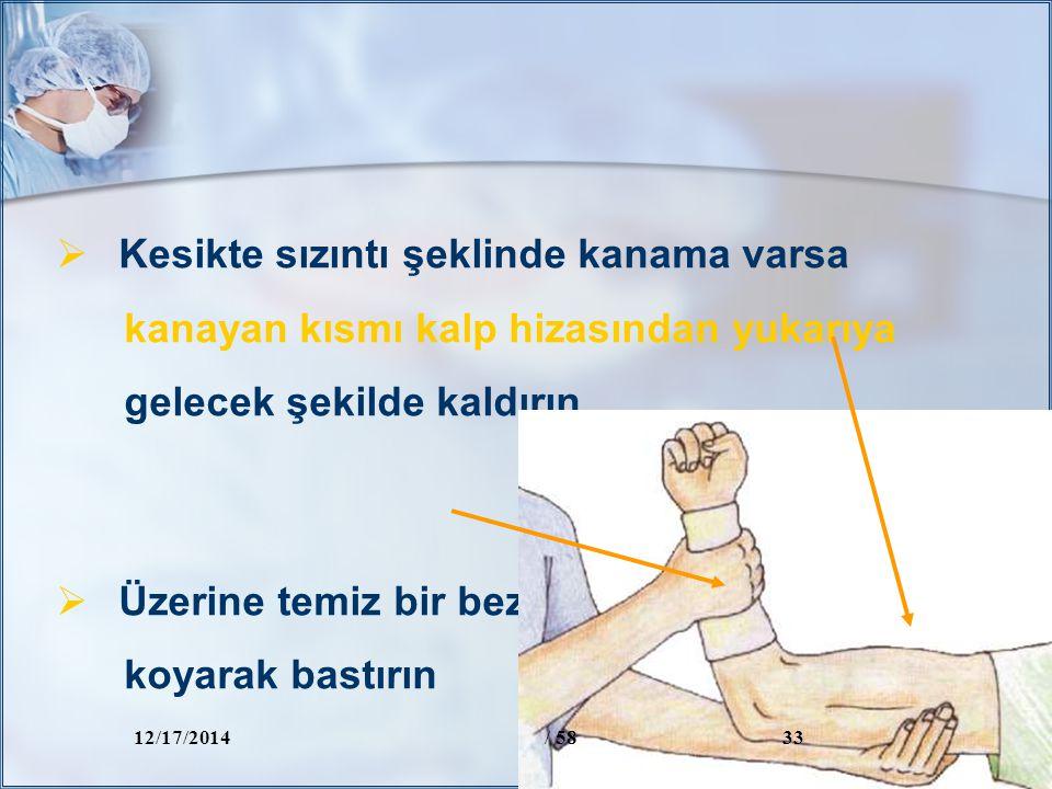 Kesikte sızıntı şeklinde kanama varsa kanayan kısmı kalp hizasından yukarıya gelecek şekilde kaldırın  Üzerine temiz bir bez koyarak bastırın  Kan