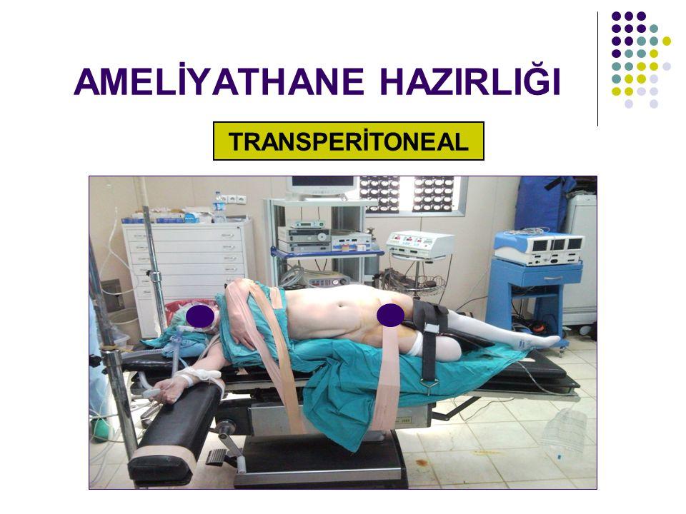 AMELİYATHANE HAZIRLIĞI TRANSPERİTONEAL