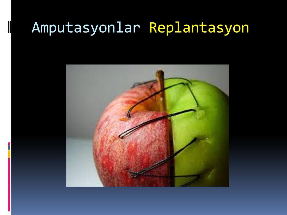 Amputasyonlar Replantasyon