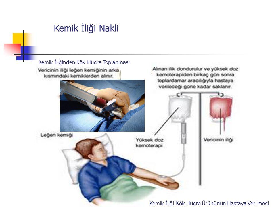Kemik İliği Nakli Kemik İliğinden Kök Hücre Toplanması Kemik İliği Kök Hücre Ürününün Hastaya Verilmesi