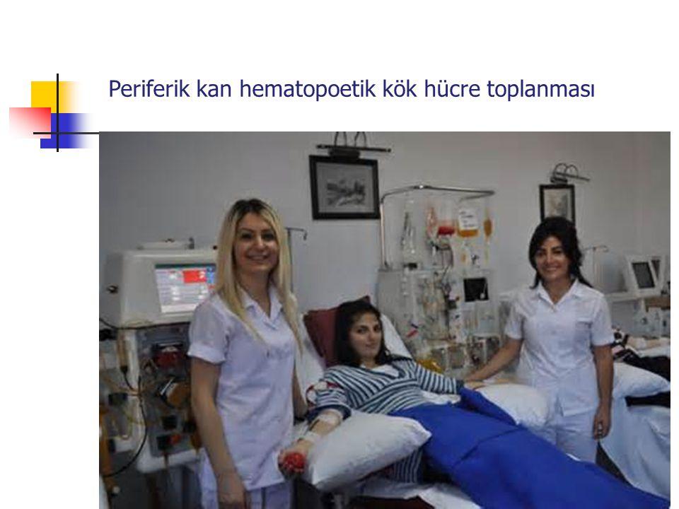 Periferik kan hematopoetik kök hücre toplanması