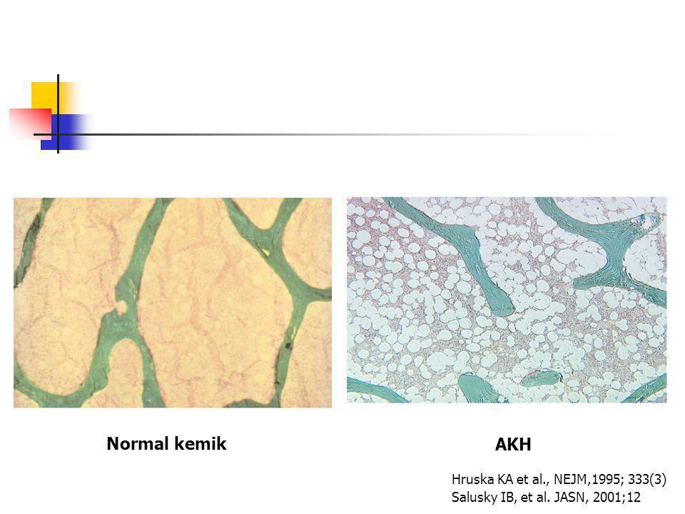Normal kemik AKH Hruska KA et al., NEJM,1995; 333(3) Salusky IB, et al. JASN, 2001;12