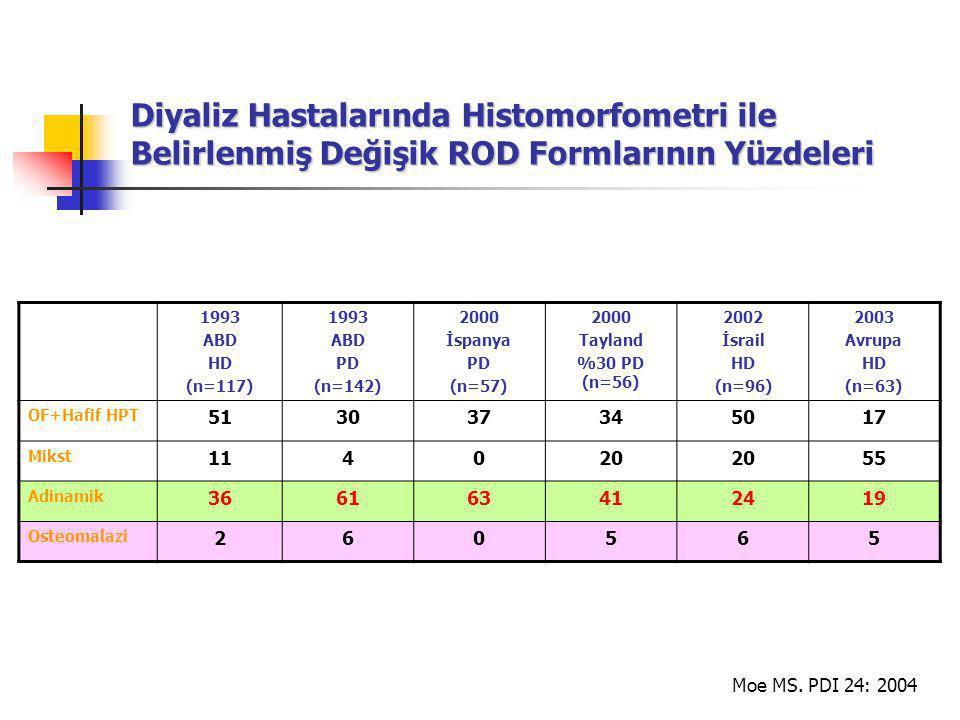 Diyaliz Hastalarında Histomorfometri ile Belirlenmiş Değişik ROD Formlarının Yüzdeleri 1993 ABD HD (n=117) 1993 ABD PD (n=142) 2000 İspanya PD (n=57) 2000 Tayland %30 PD (n=56) 2002 İsrail HD (n=96) 2003 Avrupa HD (n=63) OF+Hafif HPT 513037345017 Mikst 114020 55 Adinamik 366163412419 Osteomalazi 260565 Moe MS.