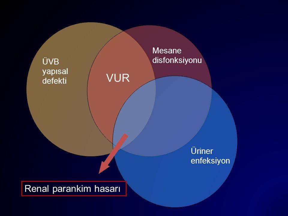 ÜVB yapısal defekti VUR Mesane disfonksiyonu Üriner enfeksiyon Renal parankim hasarı