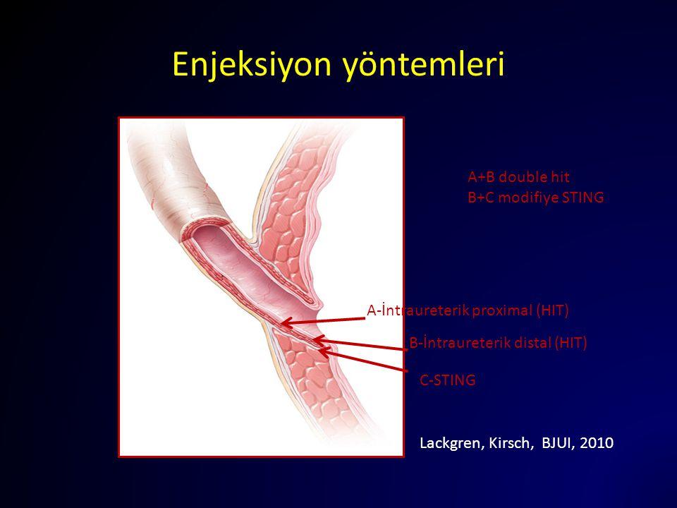 Enjeksiyon yöntemleri A-İntraureterik proximal (HIT) C-STING B-İntraureterik distal (HIT) A+B double hit B+C modifiye STING Lackgren, Kirsch, BJUI, 20