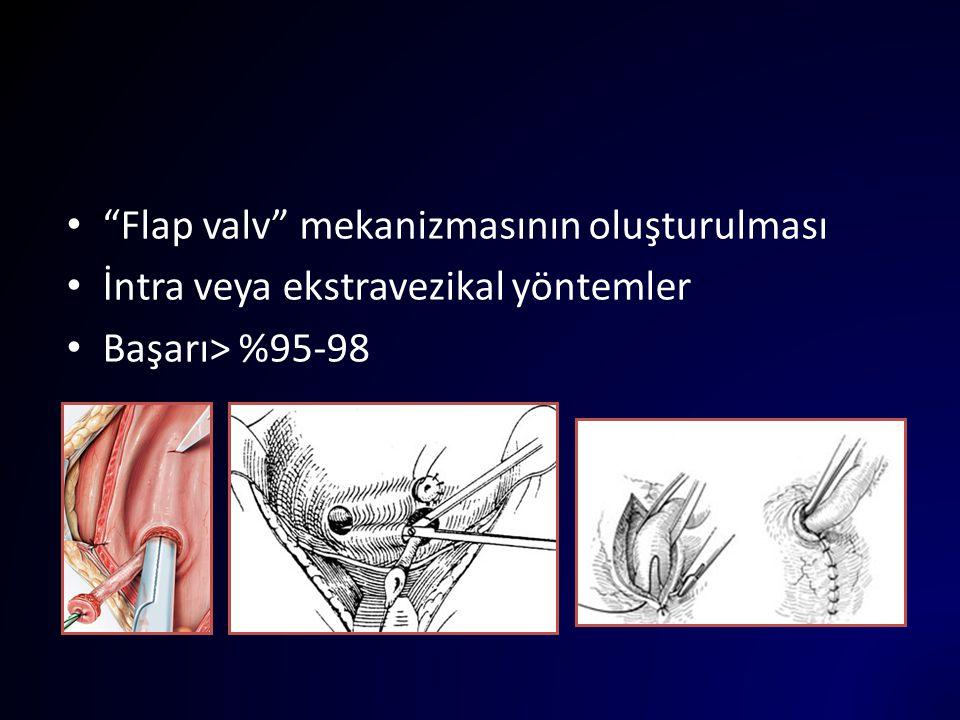 """""""Flap valv"""" mekanizmasının oluşturulması İntra veya ekstravezikal yöntemler Başarı> %95-98"""