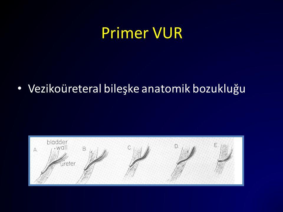 Primer VUR Vezikoüreteral bileşke anatomik bozukluğu