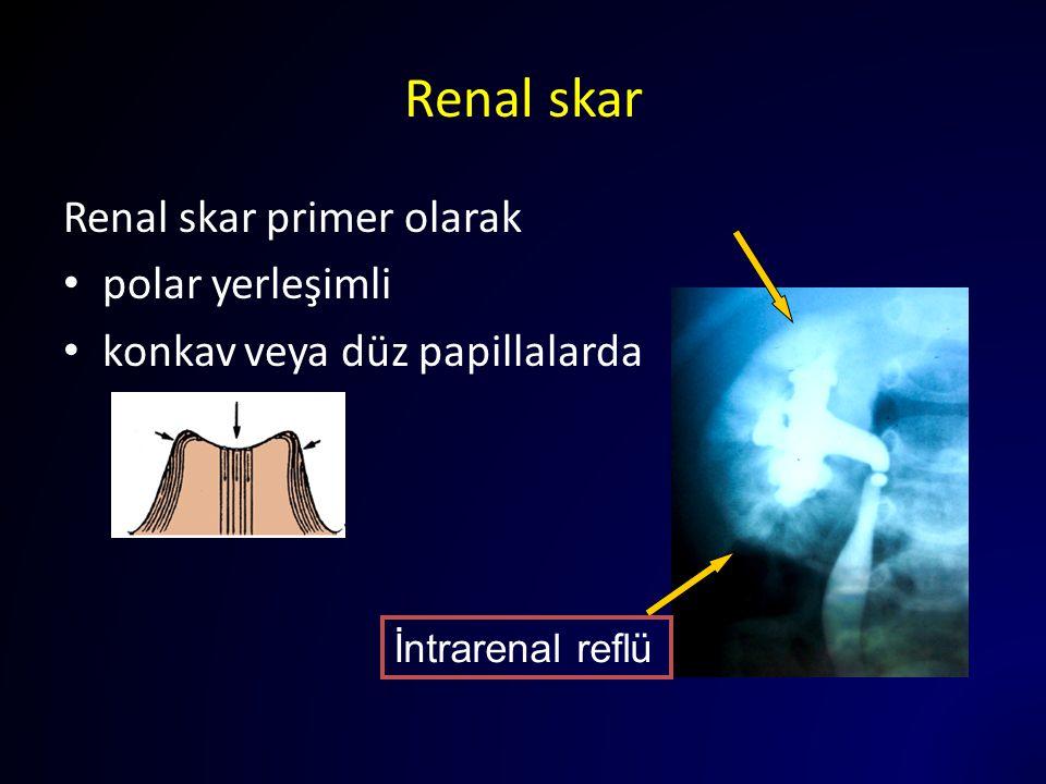 Renal skar Renal skar primer olarak polar yerleşimli konkav veya düz papillalarda İntrarenal reflü