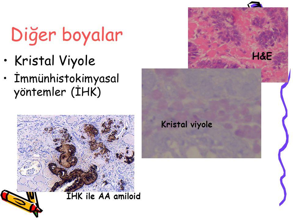 Diğer boyalar Kristal Viyole İmmünhistokimyasal yöntemler (İHK) Kristal viyole İHK ile AA amiloid H&E