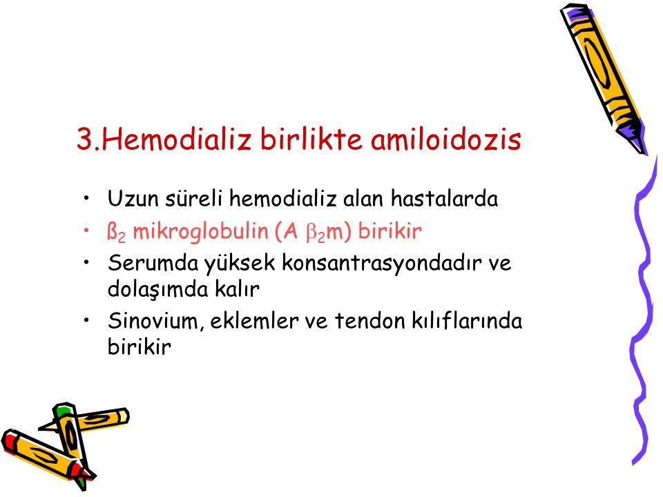 3.Hemodializ birlikte amiloidozis Uzun süreli hemodializ alan hastalarda ß 2 mikroglobulin (A  2 m) birikir Serumda yüksek konsantrasyondadır ve dolaşımda kalır Sinovium, eklemler ve tendon kılıflarında birikir