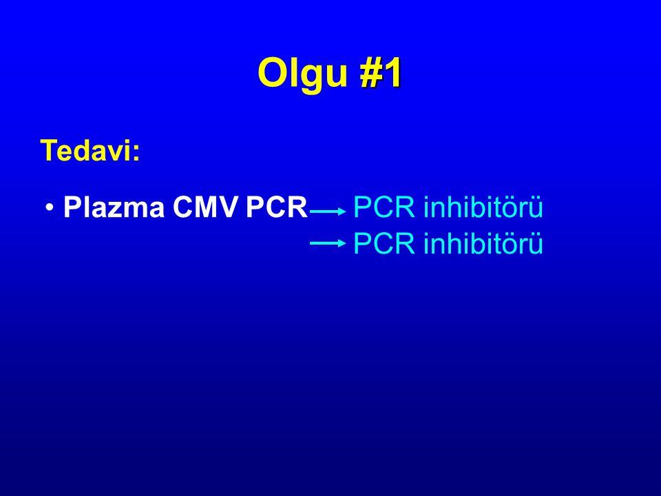 Tedavi: #1 Olgu #1 Plazma CMV PCRPCR inhibitörü