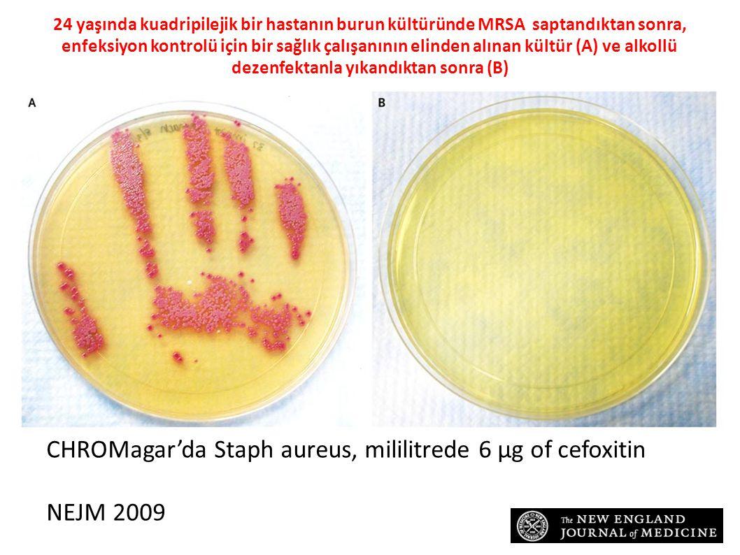 24 yaşında kuadripilejik bir hastanın burun kültüründe MRSA saptandıktan sonra, enfeksiyon kontrolü için bir sağlık çalışanının elinden alınan kültür (A) ve alkollü dezenfektanla yıkandıktan sonra (B) CHROMagar'da Staph aureus, mililitrede 6 µg of cefoxitin NEJM 2009
