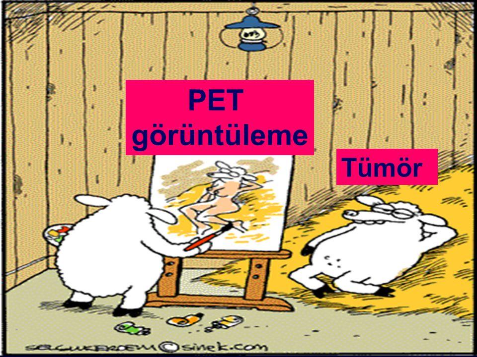 PET görüntüleme Tümör