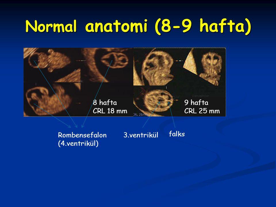 Normal anatomi (8-9 hafta) 9 hafta CRL 25 mm 8 hafta CRL 18 mm Rombensefalon (4.ventrikül) falks 3.ventrikül